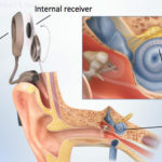 Cochlear Implant Surgery Cost