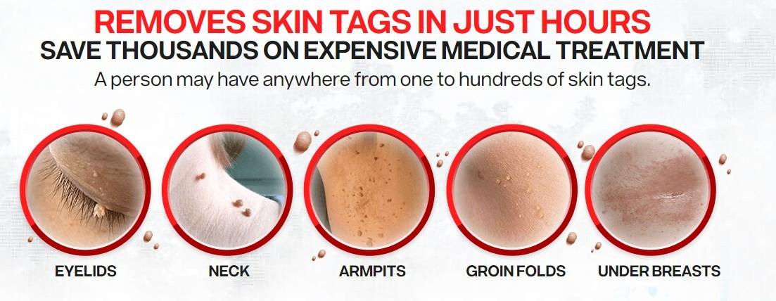 Remove Skin Mole